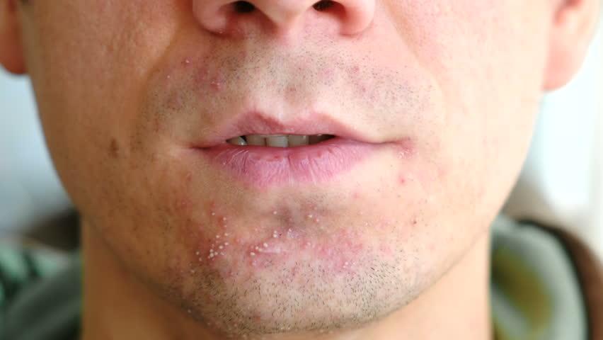علاجات طبيعية ومنزلية لعلاج التهاب الجلد بعد الحلاقة